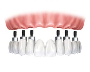 Dental Implant FIXED OPTION