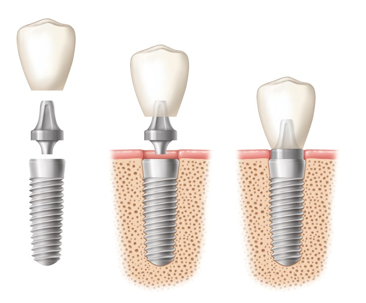 Implant-Components