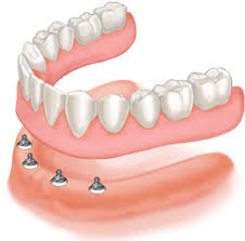 implant overdenture OPTION 1