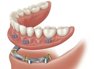 implant-overdenture with Bar OPTION 2